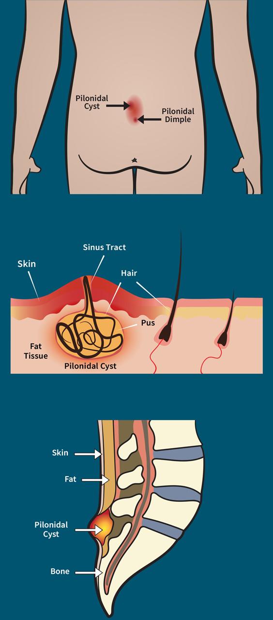 PTCNJ-Diagram-Three-Part-Illustration_Vert